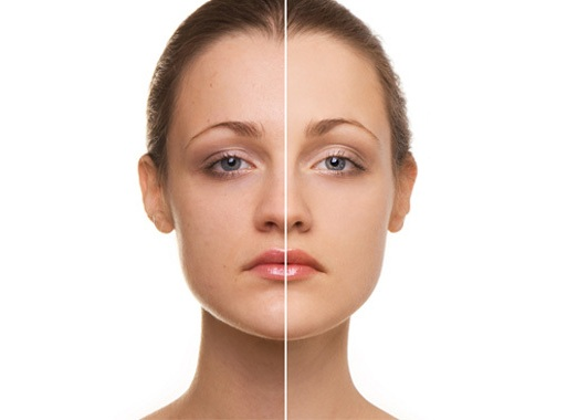 3 Things That You Need To Know About Anti Aging Skincare