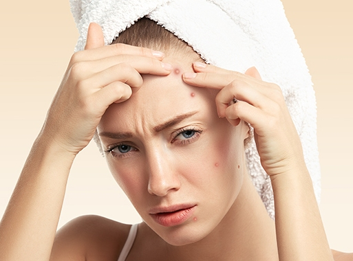 A Simple Guide To Treating Hair Problems & Acne For Young Adults